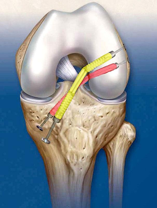 Джоджуа алхаз вальтерович эндопротезирование тазобедренных суставов остенил уколы в сустав
