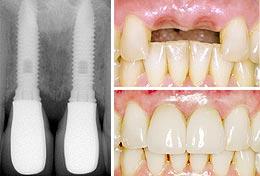 Восстановление утерянных зубов