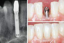 Восстановление утерянных зубов имплантами