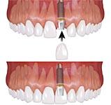 Имплантация при потере одного зуба