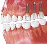 Имплантация при потере нескольких зубов