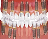 Имплантация при полной потере зубов