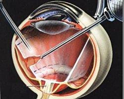 Технология щадящей витреоретинальной хирургии наиболее тяжелых форм диабета глаза