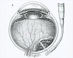 Технология комбинированной хирургии больших внутриглазных меланом