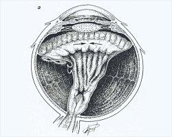 Технология органосохраняющей хирургия для останавливает прогрессирование субатрофии глазного яблока