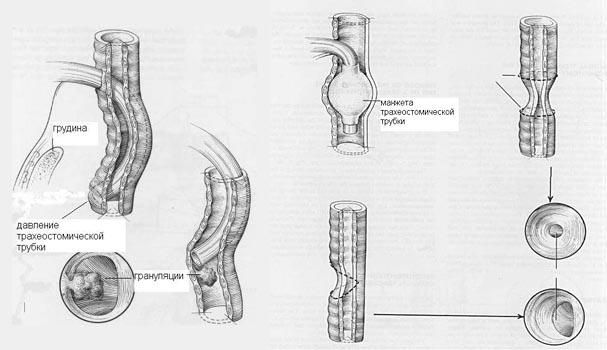 стеноза трахеи