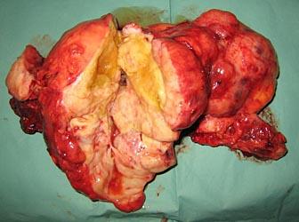 Хирургическое лечение гигантских опухолей грудной клетки