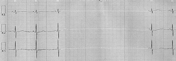 Fragment of Holter ECG Patient M. with a pause of ventricular asystole up to 5.9 seconds recorded at night