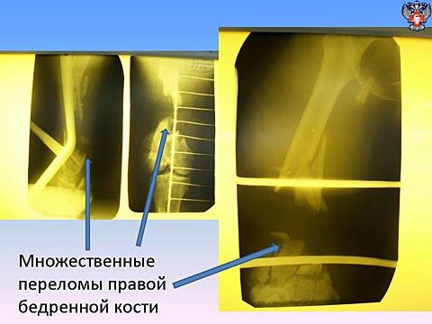 Множественные переломы правой бедренной кости