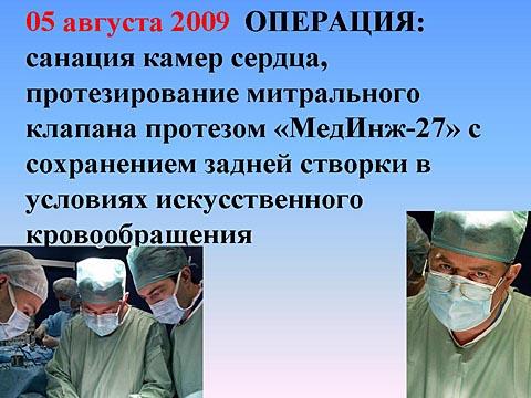 Операция: протезирование митрального клапана