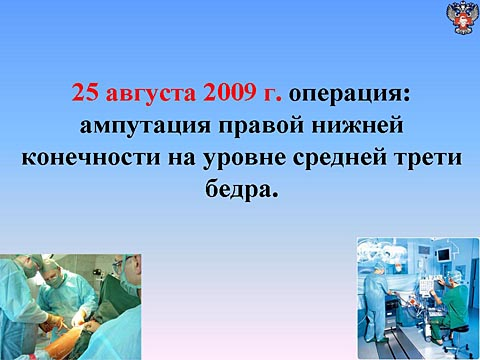 Операция: ампутация правой нижней конечности
