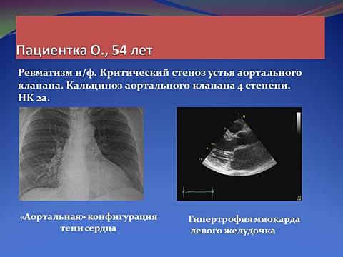 Критический стеноз устья аортального клапана