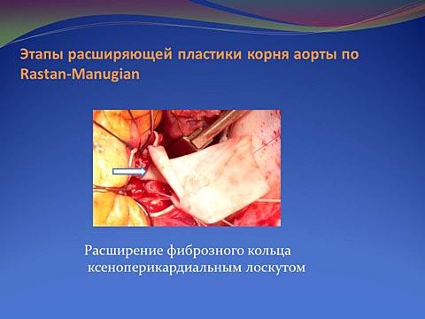 Этапы расширяющей пластики корня аорты по Rastan-Manugian