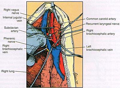 Опухоль Панкоста, или опухоль верхней борозды легкого
