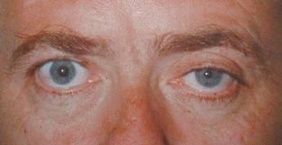 синдром Бернара - Горнера