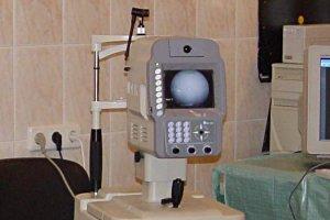 Исследования на немидриатическая фундус камера (NIDEK, Япония)